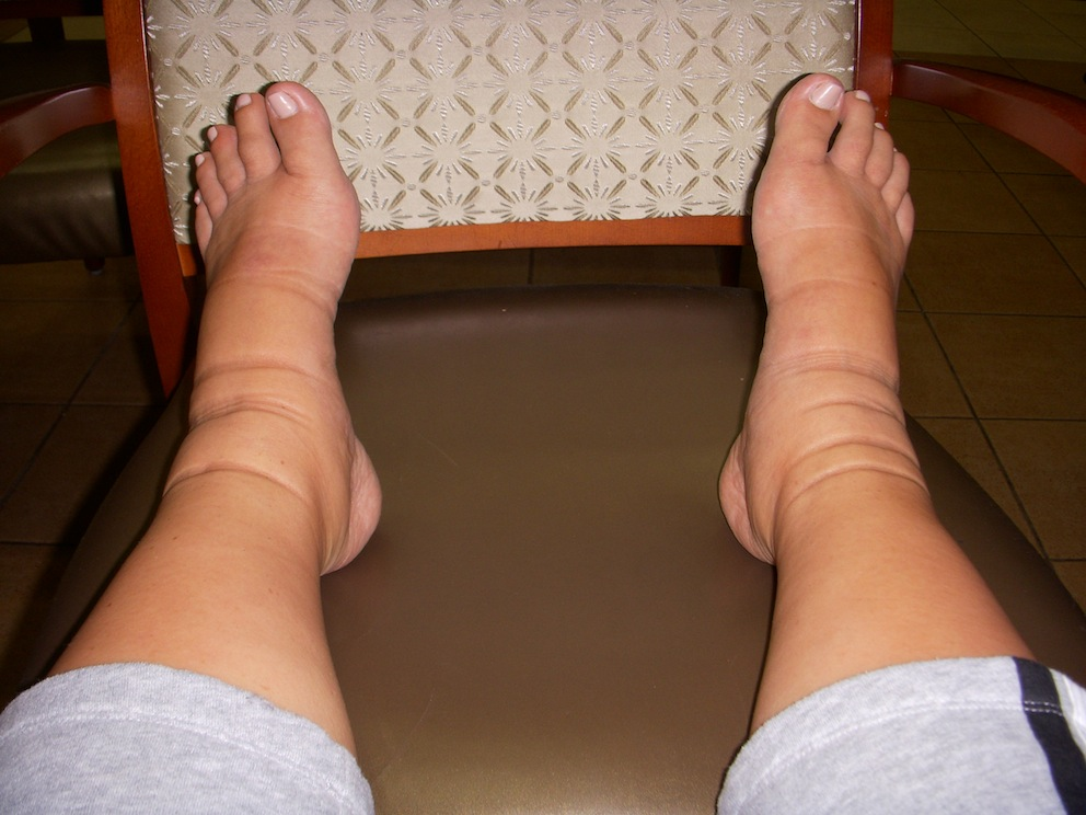 aabeb60f0e One of my unexpected battles during my first pregnancy was extreme swelling  in my feet and ankles..and now that I think about it, my legs in general  got a ...